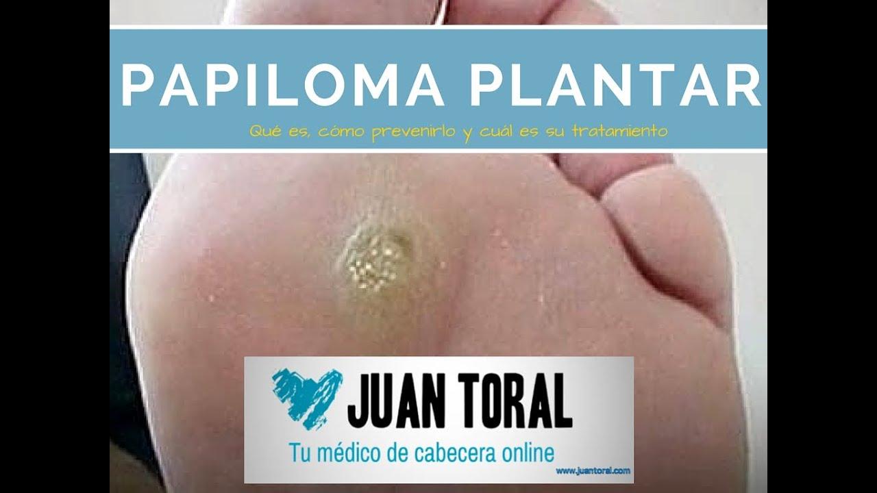 crema papiloma plantar)