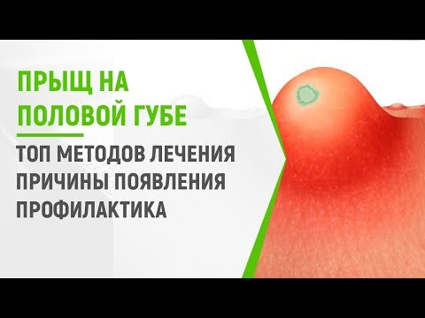 Прыщ на половой губе: ТОП методов лечения, причины