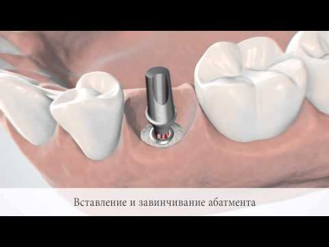 Имплантация зубов в Москве: цена, виды, фото, отзывы