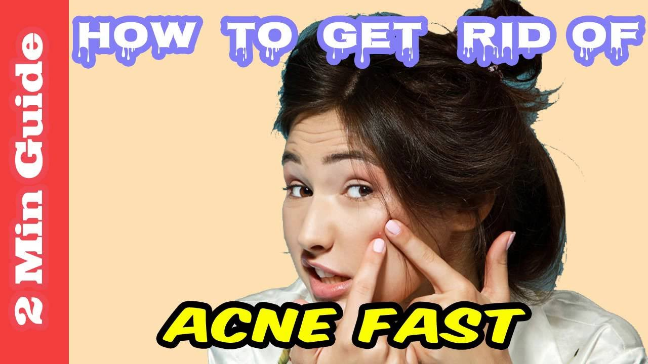 how to get rid of pimples forever naturally
