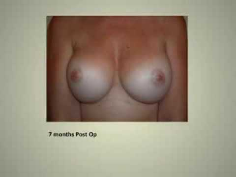 Stages of Healing After Breast Augmentation, Part II
