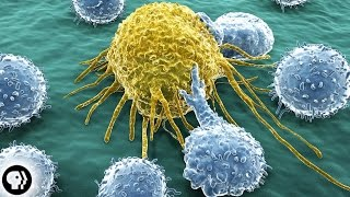 Why Do So Many People Get Cancer?