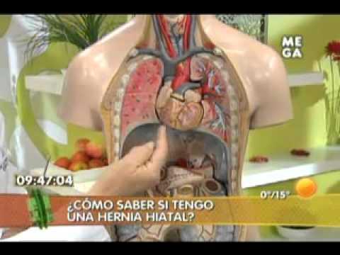 CHILOMASTIX TRATAMIENTO MESNILI PDF