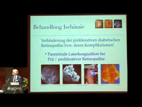 Update: Diagnose/Therapie diabetischer Augenschäden: Dr. med. Martin K. Schmid, Luzern