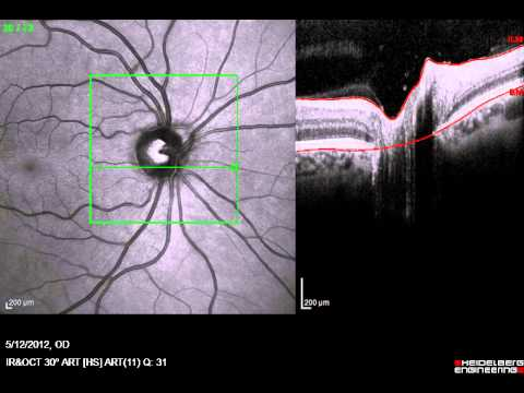 OCT scan through the optic nerve