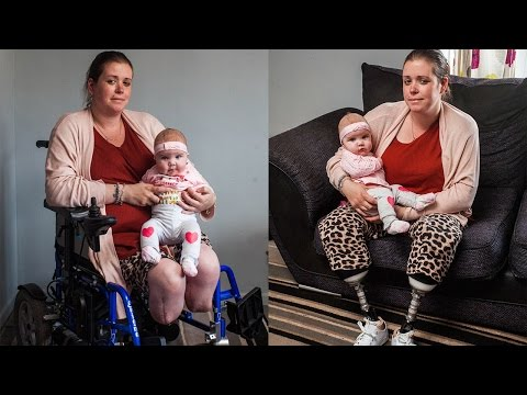 Mother Has Legs Amputated After Giving Birth