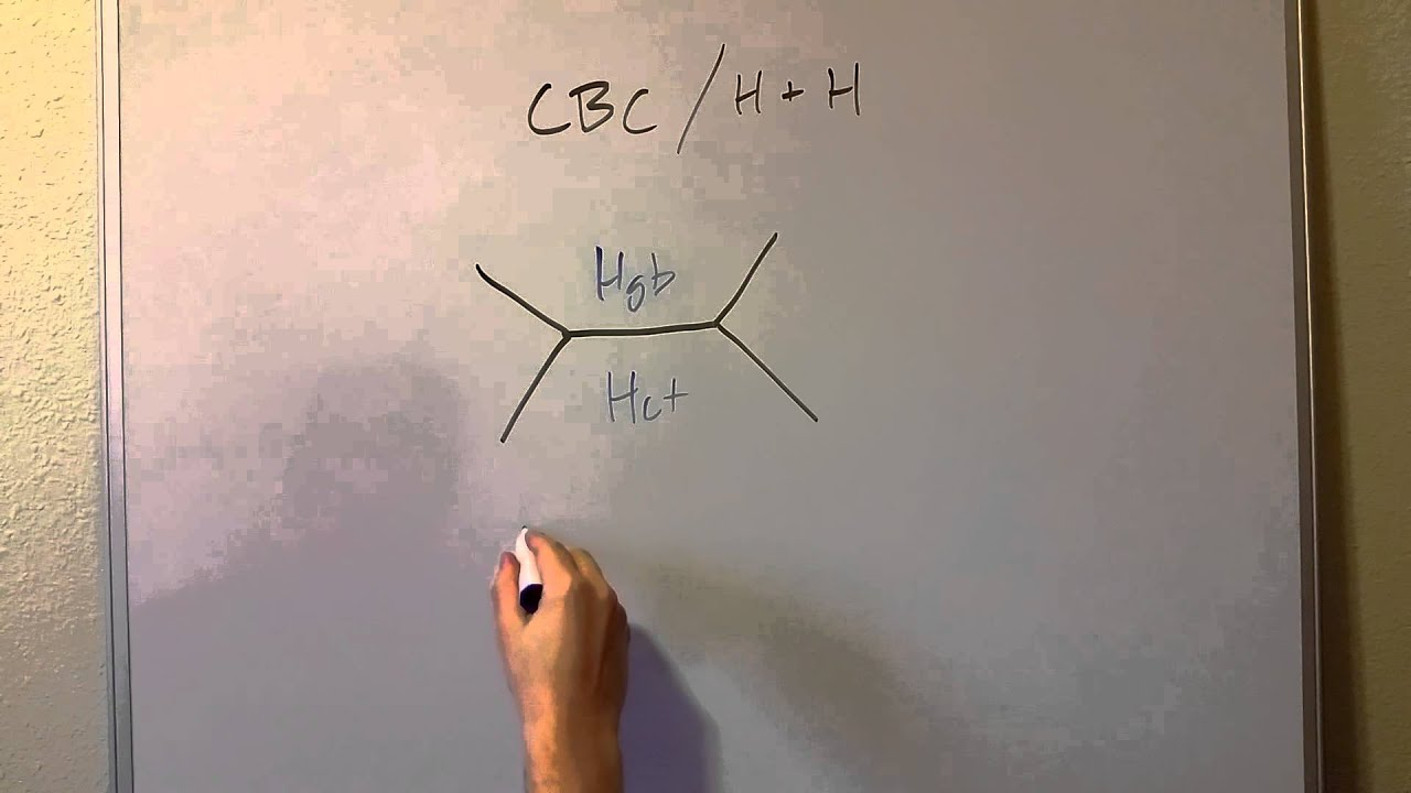 CBC or HH Shorthand: Fishbone Diagram  YouTube
