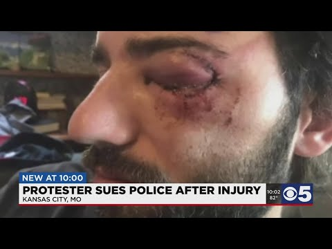 """""""There has to be a better way:"""" Man sues Kansas City, police board after eye was injured during"""