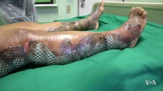 Alternative Therapy Uses Fish Skin for Burn Relief