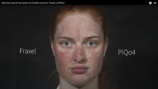 Split face trial of two lasers for freckle removal - Fraxel vs PiQo4