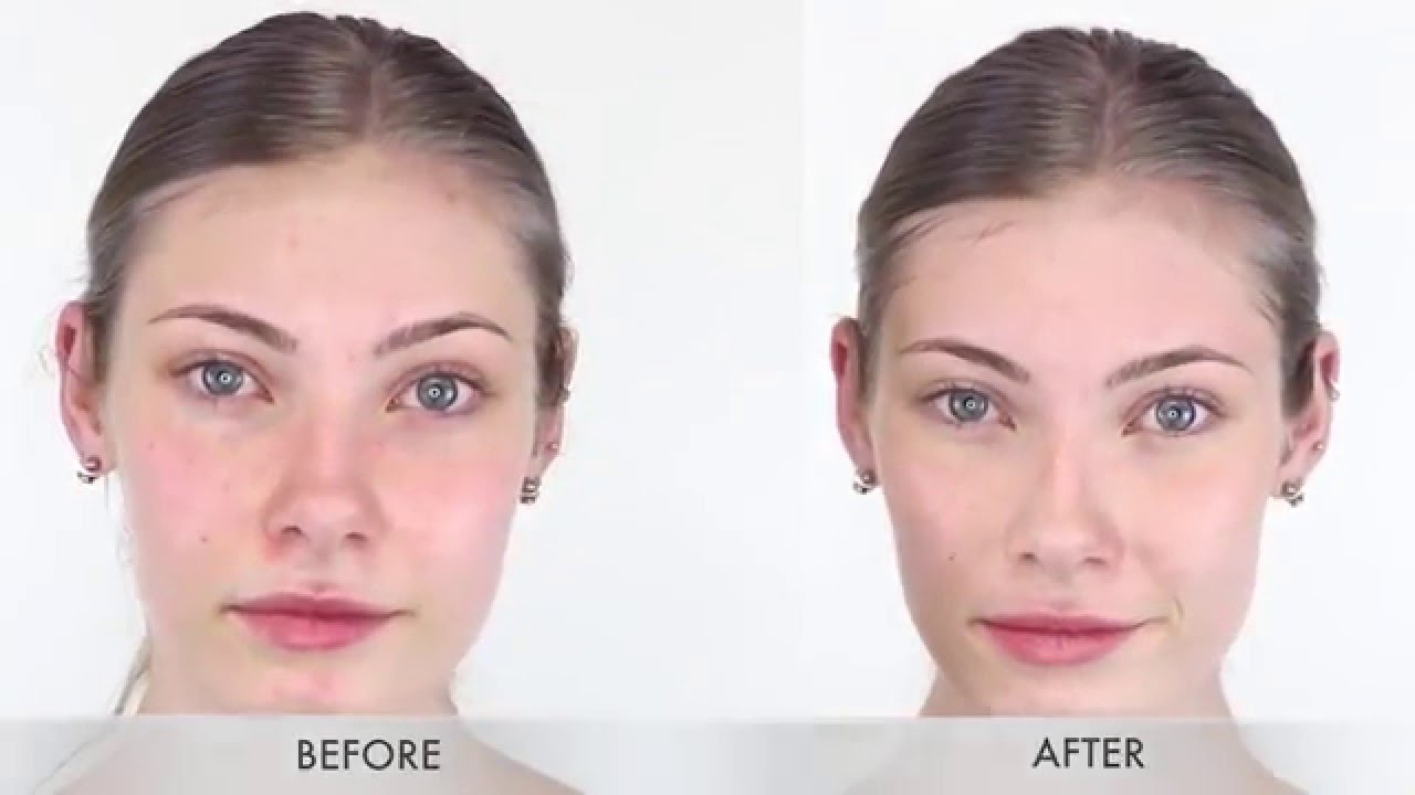 acne on face after steroids