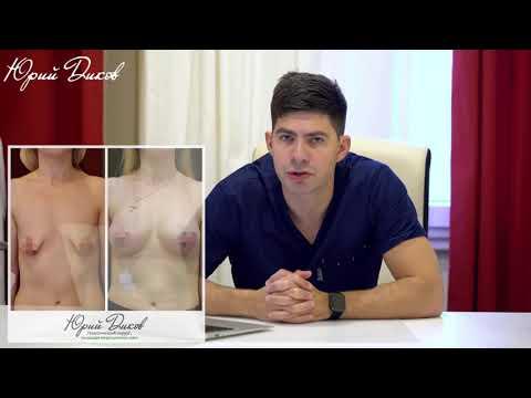 Подтяжка груди, какие бывают виды подтяжки груди
