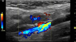 УЗИ лимфатического узла (клиника