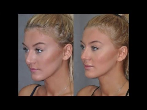 Best Rhinoplasty Nosejob Surgeon Beverly Hills Los Angeles - Closed, Minimally Invasive, Revision