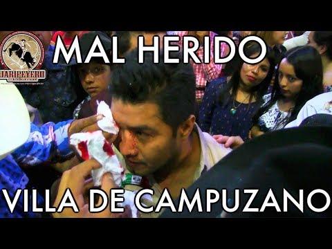 MAL HERIDO!! SELECCION PODEROSA EN EL RELICARIO DE MORELIA