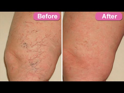 how-to-get-rid-of-spider-veins-home-remedy-for-varicose-veins