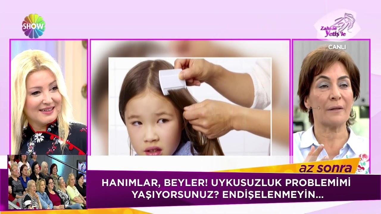 Saç Bitlerinden Kurtulmanın Püf Noktaları Youtube
