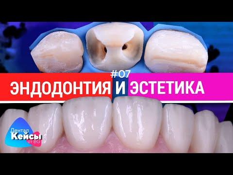 Эндодонтия и эстетика. #07