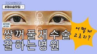 쌍꺼풀재수술잘하는병원 결정장애!!!!!