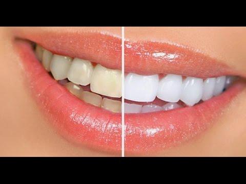 Ampuh Cara Memutihkan Gigi Secara Alami Dan Cepat Youtube