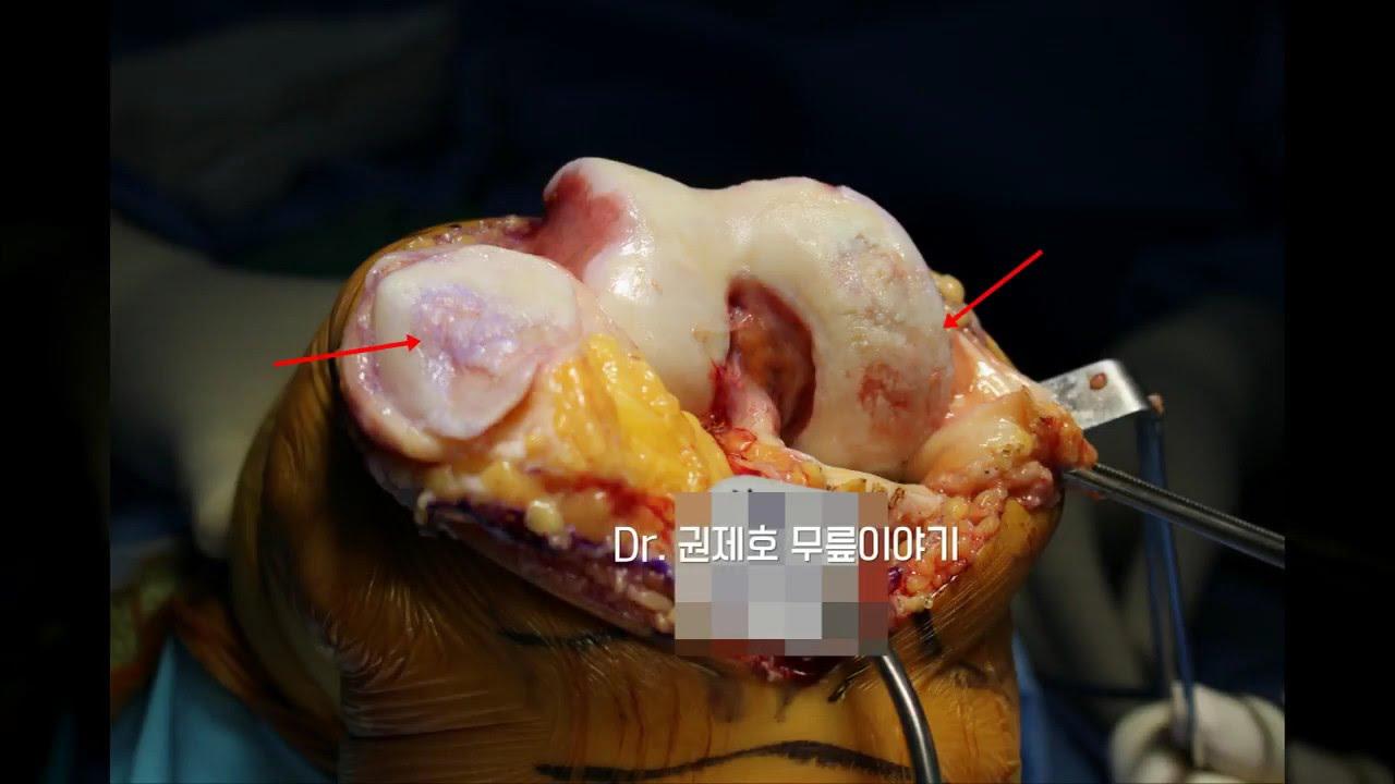 무릎관절염 과 인공관절치환술 TKA