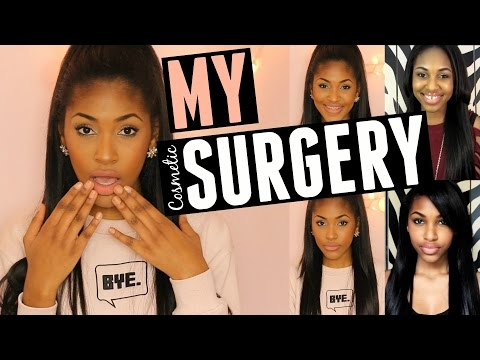 I GOT COSMETIC SURGERY!