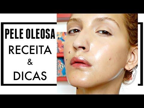 Como fazer um Sabonete Facial IDEAL para Pele Oleosa e Acneica + Dicas   Karina Viega