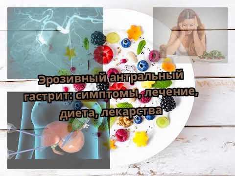 Эрозивный антральный гастрит: симптомы, лечение и лекарства