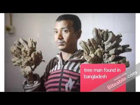 tree man found in bangladesh