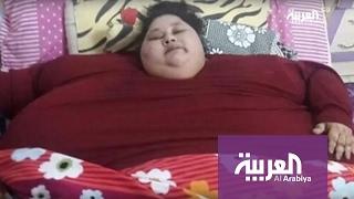 عملية جراحية لفتاة مصرية تزن نصف طن في الهند