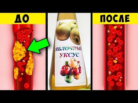 Невероятная Польза Яблочного Уксуса для Здоровья, о которой вы Не знали + Рецепт Домашнего уксуса