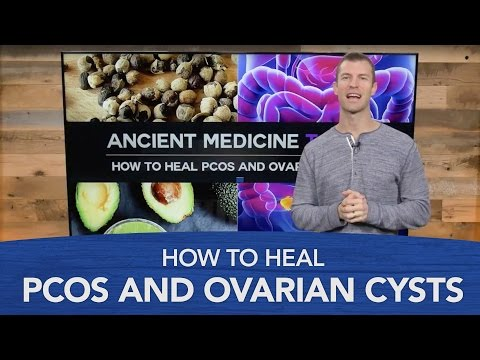 How to Treat PCOS and Ovarian Cysts Naturally