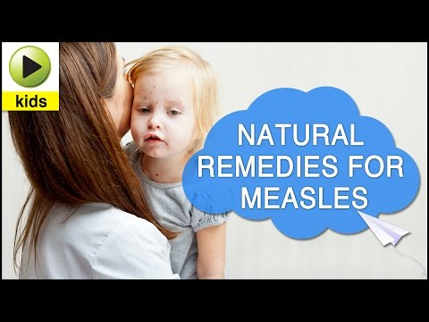 Kids Health: Measles - Natural Home Remedies for Measles