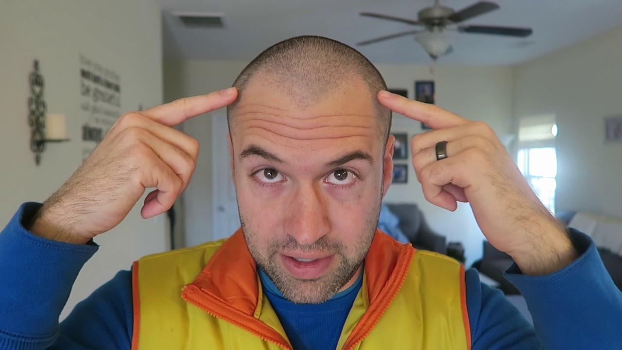 shaved-hairline-is-still-visible