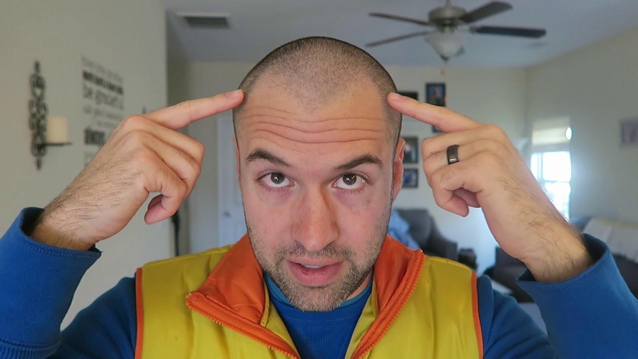 Thinning Hair Buzz Cut After