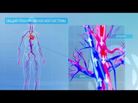Как лечить варикоз на ногах – Лечение варикоза в домашних
