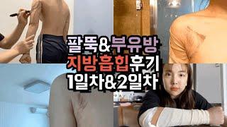 → Daily VLOG→ 팔뚝&부유방 지방흡힙후기_수술…