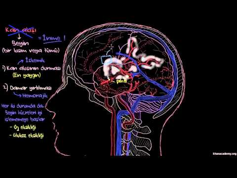 Felç İnme Nedir? Dolaşım Sistemi Hastalıkları