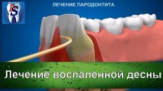 Уроки стоматологии  Как лечат воспаленную десну в стоматологическом кабинете