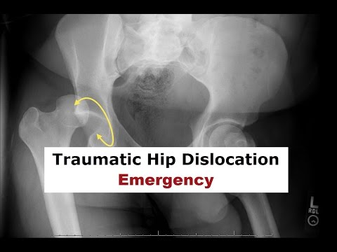 Traumatic Hip Dislocation Emergency