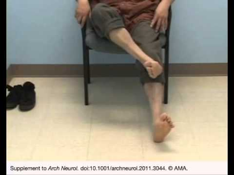 Patient With Spinocerebellar Ataxia Types 2 and 10