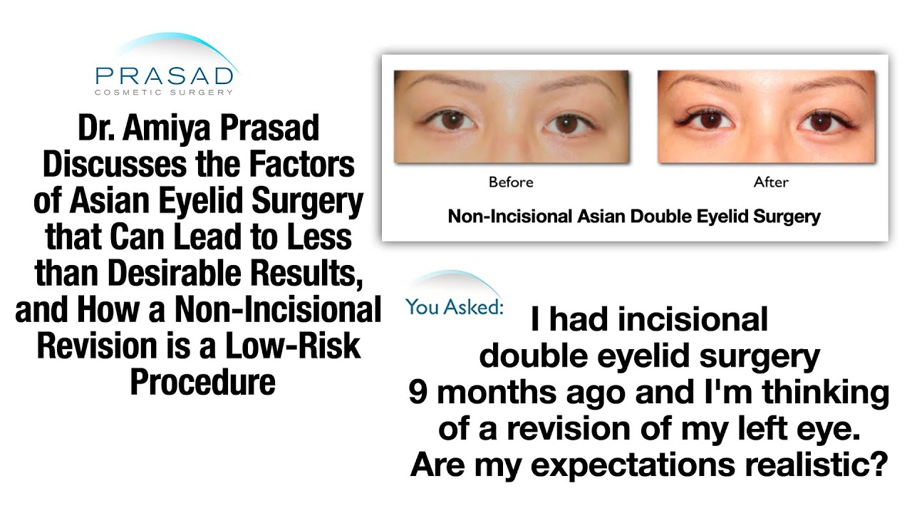 Factors that Affect Asian Double Eyelid Surgery, and Revision ...