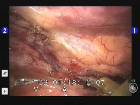 Dr. Francis Sutter Performs Robotic Coronary Artery Bypass Graft Surgery