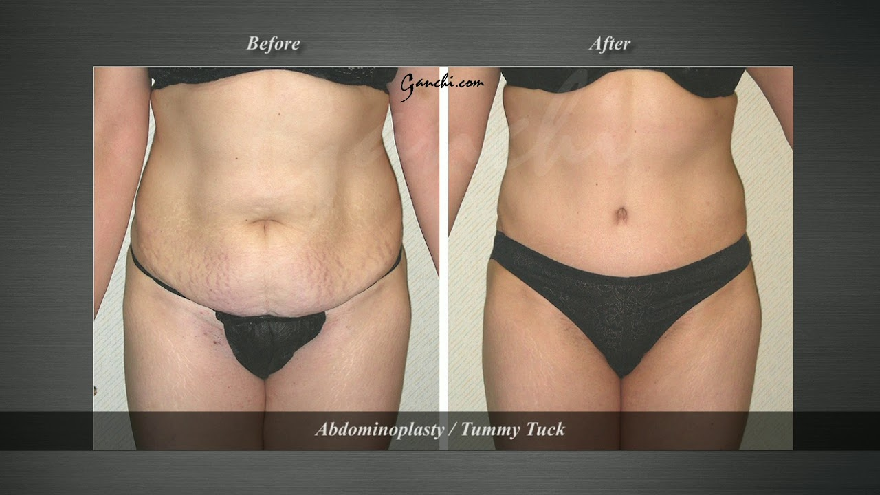 Tummy Tuck Before and After | Abdominoplasty New Jersey