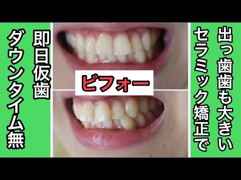 私の悩みは前歯が出ていることでした