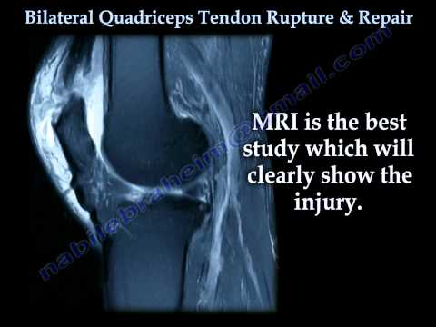 Bilateral Quadriceps Tendon Rupture & Repair - Everything You Need To Know - Dr. Nabil Ebraheim