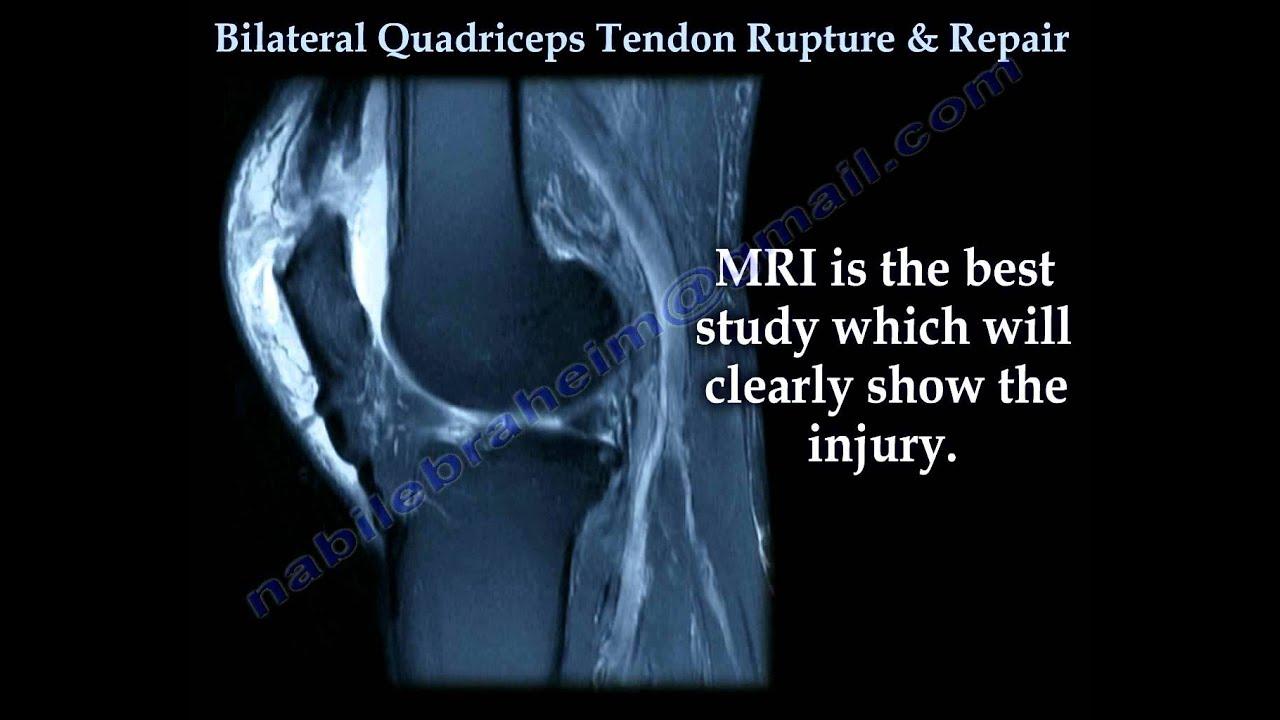 Bilateral Quadriceps Tendon Rupture & Repair - Everything You Need ...