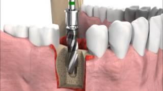 Имплантация зубов (принцип лечения)(Имплантация в Стоматологии Весна на Пионерской в Приморском районе СПб. Протезирование на имплантах у..., 2015-04-19T19:13:53.000Z)