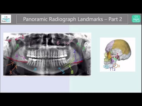 Panoramic Radiograph Landmarks Tutorial - Part 2