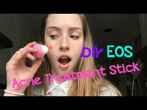 DIY Acne Treatment EOS!! Get clear skin fast!!